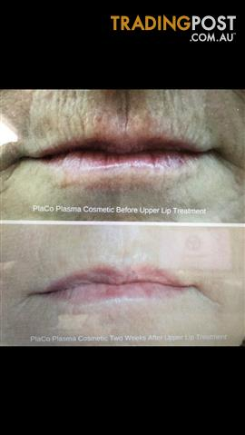 Non Surgical Eye Lift and Lip Line Rejuvenation